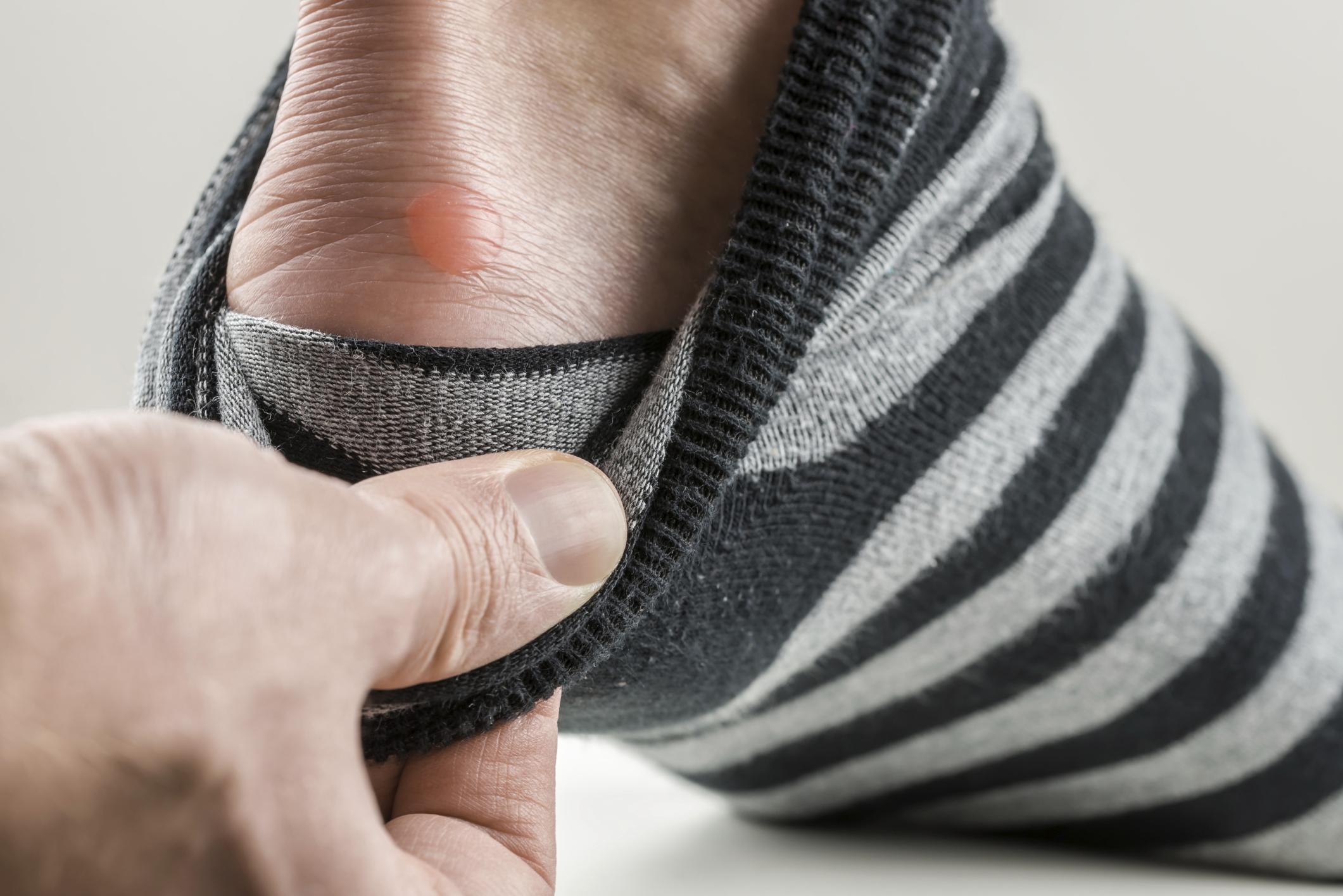 Neue Schuhe für Herbst und Winter - so vermeiden Sie Blasen und Hornhaut
